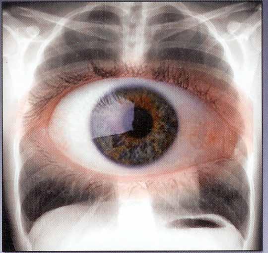 Oeil-thorax